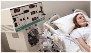Woman on Ventilator
